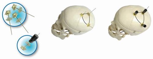 颅骨固定系统...